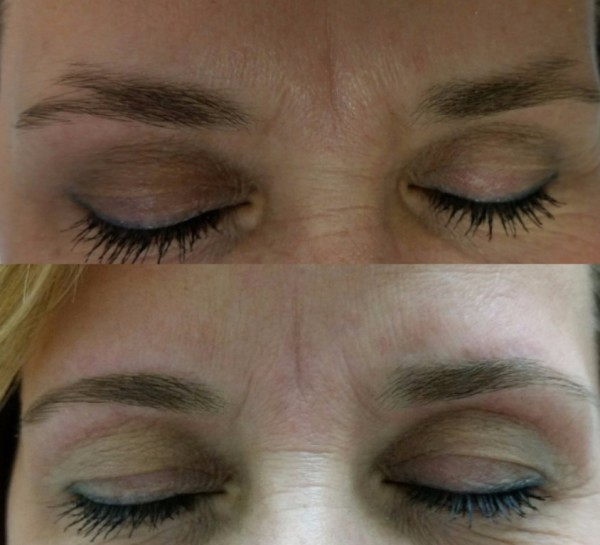 Corrective Eyebrow Design